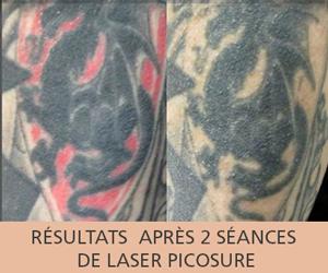 Résultats après deux séances de laser Pico seconde Picosure