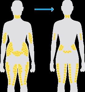 Résultats: Diminution du tissus graisseux sur les zones traitées après la séance de cryolipolyse Coolsculpting.