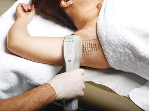 MiraDry à Paris, séance pour le traitement de la transpiration excessive ou de l'hyperhydrose axillaire