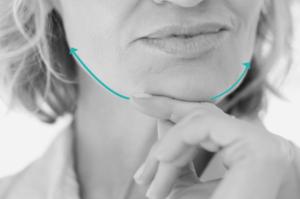 Traitement de l'ovale du visage en dermatologie et médecin esthétique avec Ulthera et la Cryolipolyse à Paris