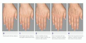 Rajeunir les mains à Paris au laser, ou avec des injections, Docteur Molinari
