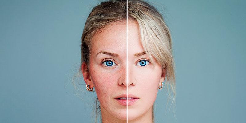 traitement de la couperose du visage à paris - Dr Molinari