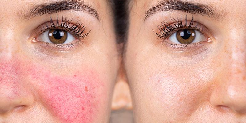 Couperose laser visage à Paris - Dr Molinari