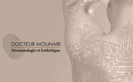 Laser Q-switched - effacer un tatouage au laser - Dr Molinari