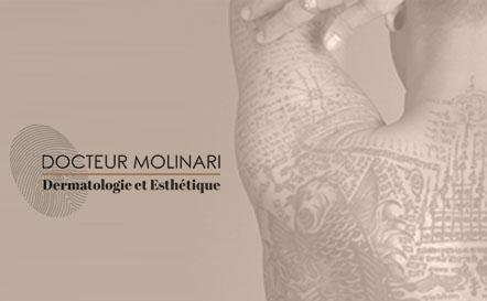 Détatouage - effacer un tatouage au laser - Dr Molinari