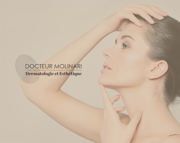 Injections Ellanse - Dr Molinari