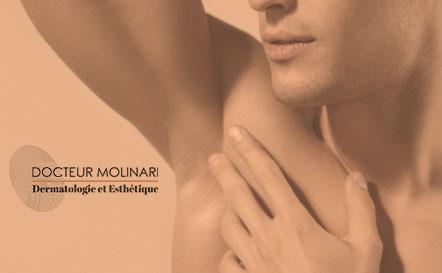 Miradry - Dr Molinari
