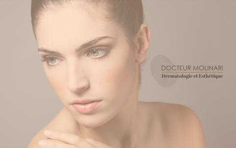 Injections Radiesse - Dr Molinari