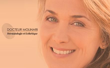 Thermage - Dr Molinari