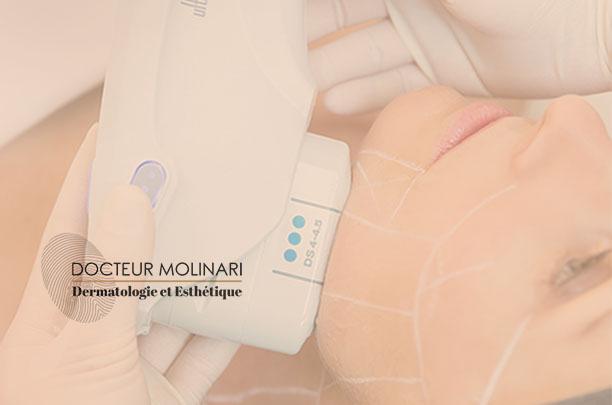 Ulthera - Dr molinari