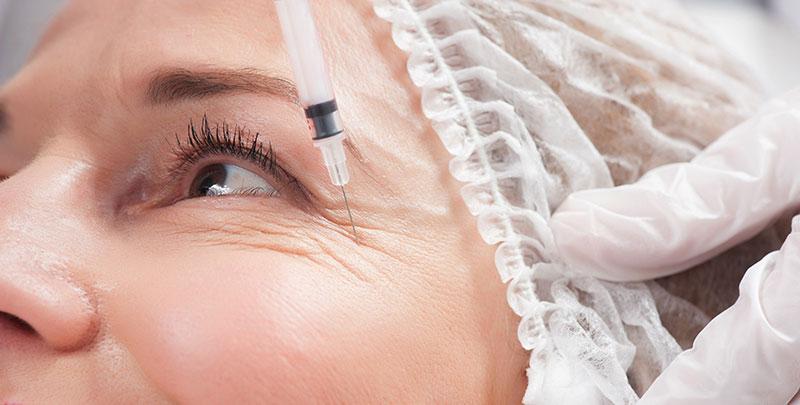 pourquoine pas avoir peur du Botox ? Dr Molinari à Paris