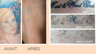 effacer_tatouage_laser_paris