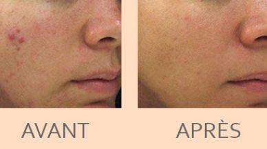 resultats_fraxel_repair_cicatrices_acne_paris